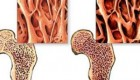 رژیم غذایی مناسب برای جلوگیری از پوکی استخوان!