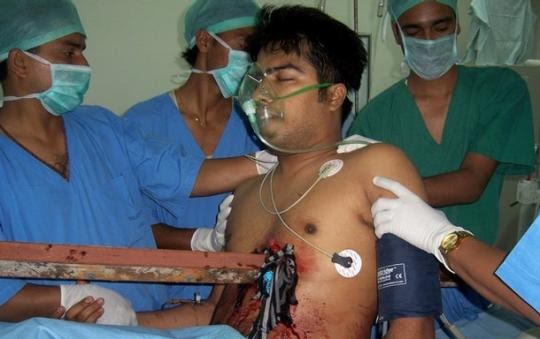 10 معجزه باور نکردنی از دنیای پزشکی + (عکس)