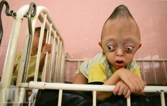 دو عکس از عجیب ترین کودک های جهان