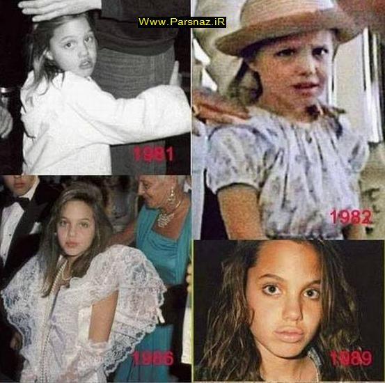 عکس های دیدنی و جذاب از تغییر چهره آنجلینا جولی