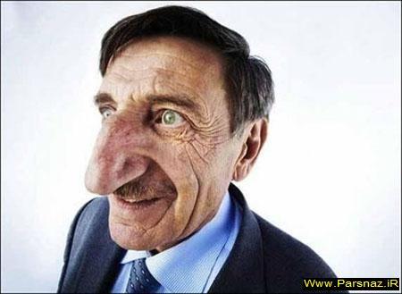 www.parsnaz.ir - مردی با بزرگ ترین و خنده دار ترین بینی دنیا +عکس