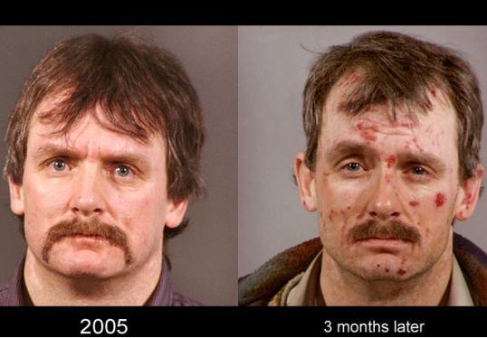 تاثیر مصرف شیشه بر صورت انسان + عکس