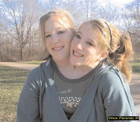 عجیب ترین خواهران آمریکا با یک بدن و دو سر +تصویر