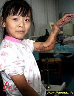 احمقانه ترین جراحی های انجام شده دنیا+ تصویر