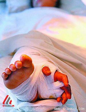 چسباندن دست به پا جراحي احمقانه