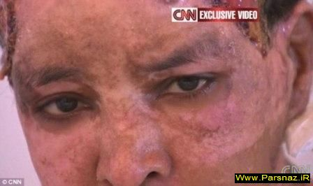 www.parsnaz.ir - شکنجه دردناک زنی که دیگر شبیه زنها نیست + تصویر