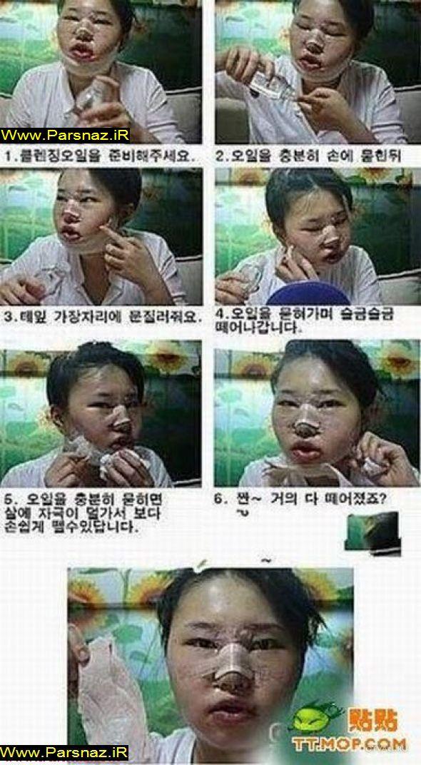 دختری که از چهره خود راضی نبود و عاقبت + تصویر