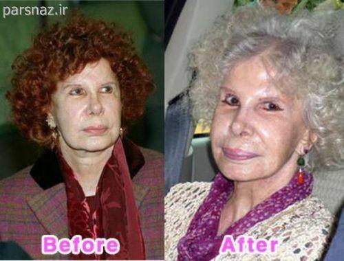 زنهای معروفی که با جراحی زیبایی زشت تر شدن + عکس