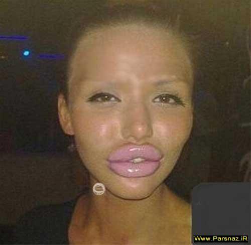 دختر زیبایی که میخواست زیباتر شود اما+ عکس