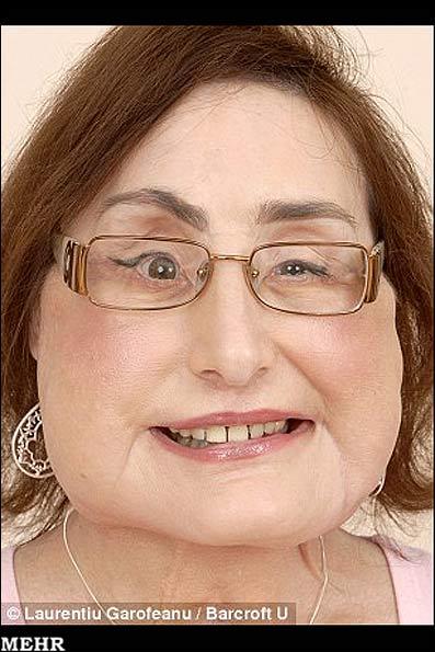 اولین زن گیرنده پیوند صورت!! +عکس (18+)