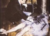مردی بسیار عجیب که بدنش خود به خود آتش گرفت + عکس