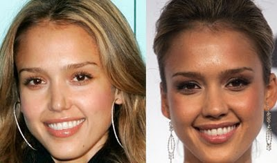 عکسهای قبل و بعد از عمل زیبایی بینی بازیگران