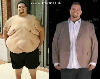 عکس هایی دیدنی از کاهش وزن 150 کیلویی یک مرد
