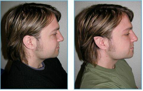 جراحی گوش ها برای شبیه شدن به شیطان + عکس