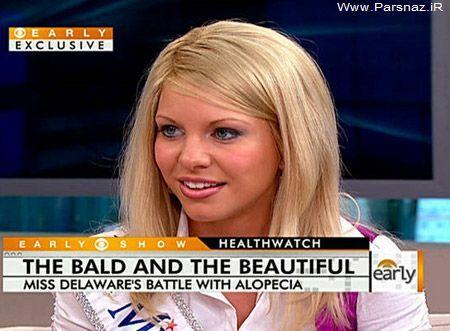 زیباترین دختر تاس آمریکا + عکس