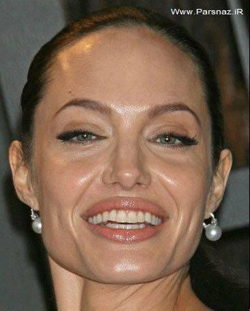 عکس های قبل و بعد عمل زیبایی آنجلینا جولی