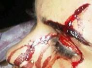 شکنجه دردناک دختر بحرینی + عکس