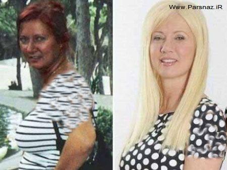 مادری با جراحی پلاستیک خودش رو شکل دخترش کرد+عکس