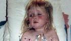 دختر 16 ساله ای که 2 قلب در سینه اش بود + عکس