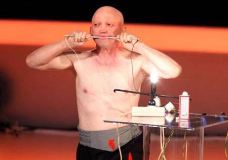 باطری انسانی مردی که بدنش رسانای برق است + عکس