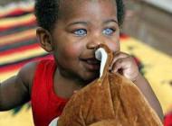 زیباترین و عجیب ترین چشم دنیا متعلق به این فرد است+عکس