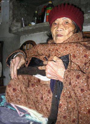 پیر زنی در چین بچه ای سنگی به دنیا آورد + عکس