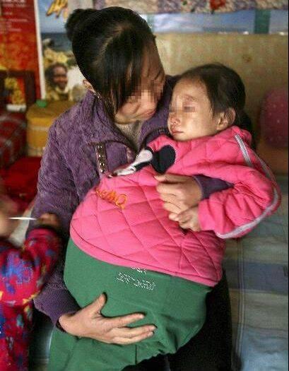 دختر که شکمش یک متر باد کرده + عکس
