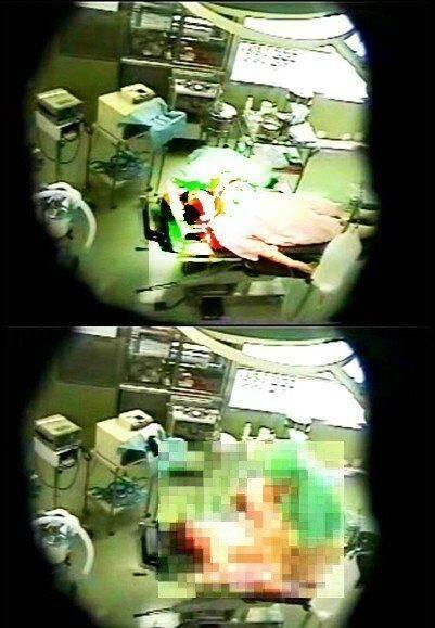 تجاوز متخصص به دختران بیهوش در اتاق عمل!! + عکس