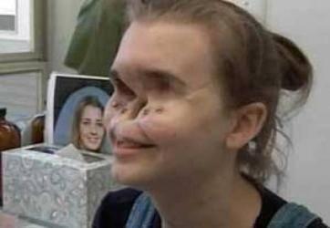 دختری که 11 سال بدون صورت زندگی کرد + تصاویر