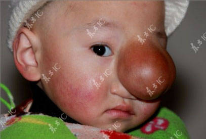 پسر بچه ای شبیه پینوکیو در کشور چین + عکس