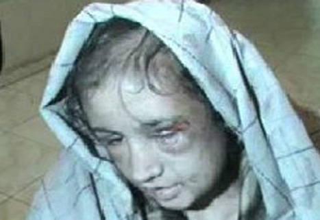 شکنجه شدید یک نوعروس ۱۵ ساله افغان + عکس