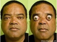 مردی که چشمانش را ۴سانتیمتر بیرون می آورد + عکس