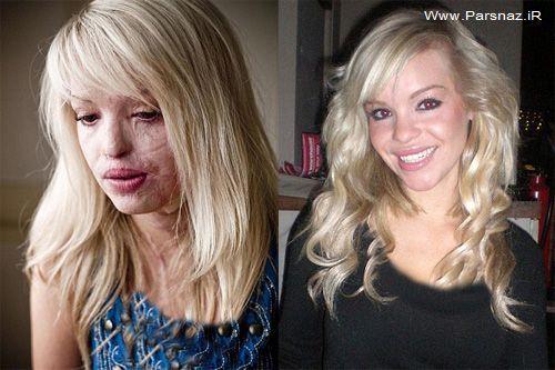 دختر 24 ساله و زیبای که قربانی اسید پاشی شد!! + عکس