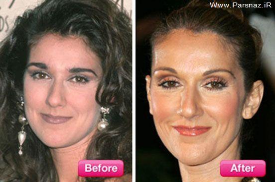 عکس های خواننده زن، قبل و بعد از جراحی زیبایی + عکس