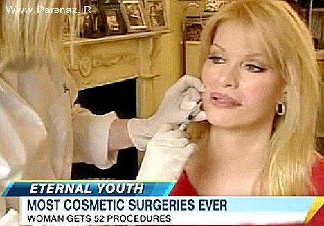 زنی که رکورد دار تعداد جراحی زیبایی در جهان شد + عکس