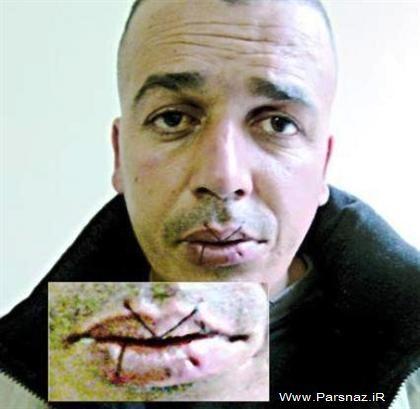 این مرد عجیب دهان خود را با نخ و سوزن دوخت + عکس