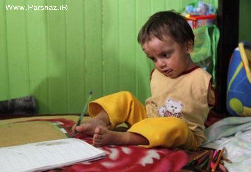 عکس های کودک بدون دست و مادر فداکار