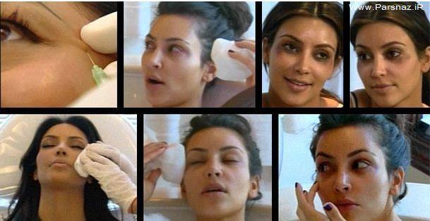 عکس های لورفته زن معروف دنیا هنگام تزریق بوتاکس