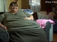کاهش باورنکردنی وزن این زن بعد از عمل جراحی + عکس