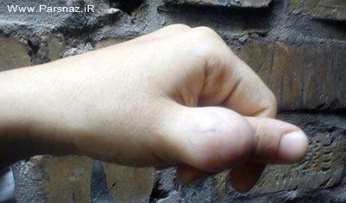 بیماری بسیار وحشتناک دختر جوان ایرانی + عکس