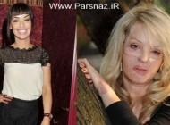 مانکن و مجری زیبایی که قربانی اسید پاشی شد + عکس