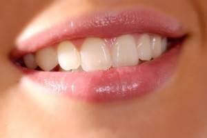 www.parsnaz.ir - هشت باور غلط درباره دندان ها که باید بدانید