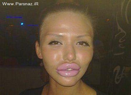 زنان دیوانه که با جراحی لقب بزرگترین لب ها را به دست آوردند