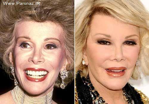 چهره وحشتناک زن هالیوود بخاطر عمل زیبایی متعدد + عکس