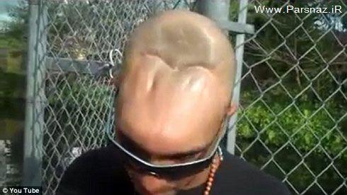 زندگی باورنکردنی با مغز و جمجمه سر نصفه این مرد + عکس