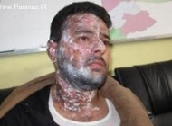 پاشیدن اسید بر روی فیلمبردار ایرانی در كابل + عکس