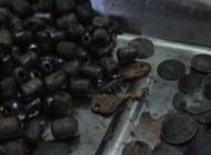 این مرد هندی در معده اش ۴۳۱ سکه پیدا شد + عکس
