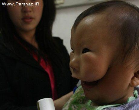 به دنیا آمدن نوزادی بسیار عجیب با دو صورت + عکس