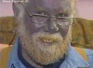 پوست آبی این مرد عجیب جهان را شگفت زده کرد + عکس