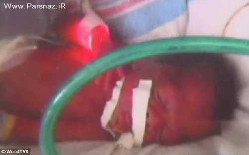 رونالدو به کما رفت زن 26 ساله در حالت کما دو قلوهایش را به دنیا آورد + عکس